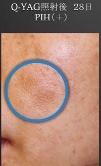 の 沈着 色素 レーザー 取り シミ 後 シミのレーザー治療後の経過・炎症後色素沈着を検証してみた